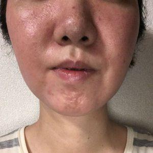 skin trouble 2017/04/29